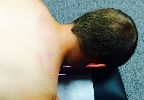 Dry Needling in Topeka Kansas